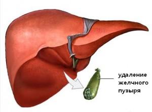 udalenie-zhelchnogo-puzyirya