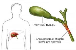 Внепеченочный холестаз