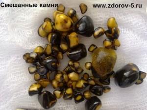 Смешанные камни в желчном пузыре